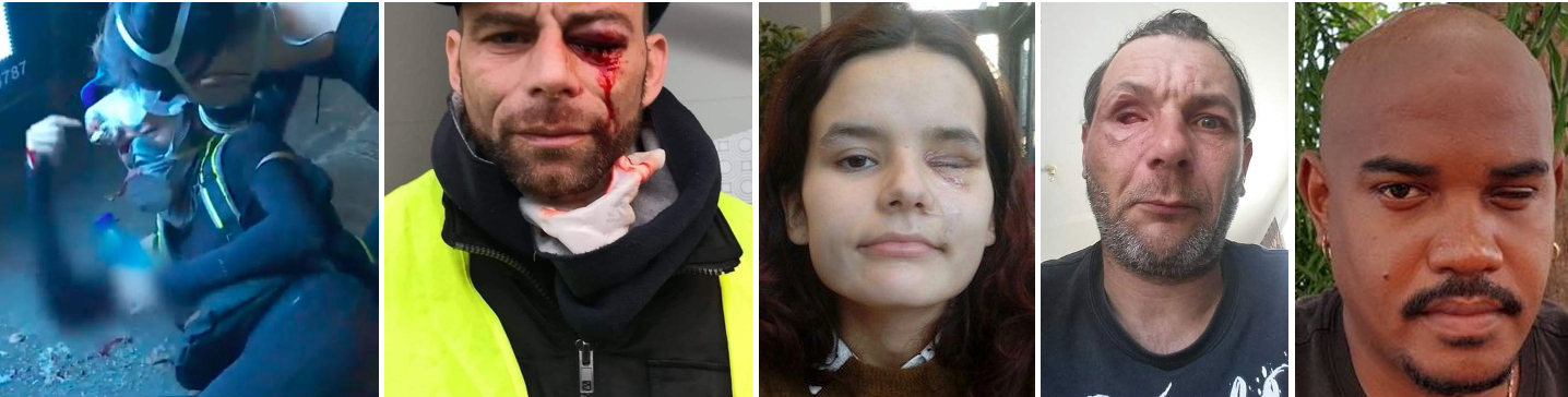 Eye injuries sustained by Hong Kong protester and 4 of the 24 Gilets Jaunes who have lost an eye since November 2018